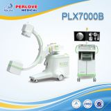 Worldwide installation C arm equipment PLX7000B for peripheral angiography