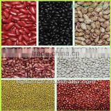 wholesale price of beans, types of kidney beans ( white kidney beans, red kidney beans, black kidney beans)