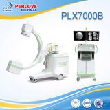 12kw middle C-arm Fluoroscopy X-ray Machine PLX7000B