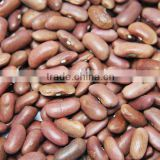 wholesale dry beans, light red kidney beans, 2015 new kidney beans