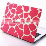 Premium Slim Water Transfer Printing Hard Cover for Apple Macbook