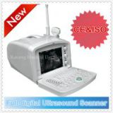 CE&ISO Ultrasound Machine cost& portable ultrasonic scanner