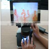 nail fold microcirculation microscope capillaroscope video microcirculation microscope capillary microscope