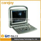 CE ISO medical diagnostic system cheap 3D Portable Color Doppler ultrasound scanner 4D Ultrasound Machine for pregnancy