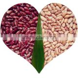 JSX free sample products black speckled beans top-ranking high quality cheap price purple kidney beans