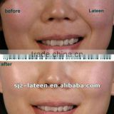 Hyaluronic acid gel injection for lips