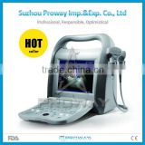 10.4inch Full Digital Color Doppler Ultrasound Machine with Optional Trolley (PRUS-KD10)