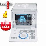 CE Medical Device Portable Hospital Clinic Ultrasound Medical Diagnose Scanner/Machine With Probe Transducer-Shelly