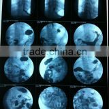 medical dry film ct film,CT/MRI/DR/CR/DSA film,medical x-ray film,konica x-ray films