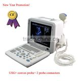 Promotion!CE approved Notebook B-Mode Ultrasound Scanner with 3.5Mhz multi-frequency convex probe RUS-9000B