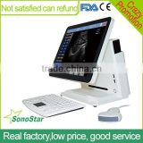 Sonostar Portable Ultrasound Color Doppler Low Prices Of Ultrasound Machine