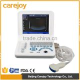 Hot Sale Sony Printer /medical use ultrasonic diagnostic-Large Screen 10.4 inch laptop ultrasound scanner