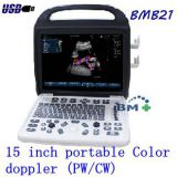 15 inch portable Color Doppler Ultrasound Scanner (PW/CW)