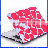 New best selling hard top case for macbook 13