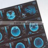 medical digital x ray film,digital x ray film,konica medical x ray film