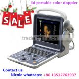 MSLCU28i Cheapest price portable laptop color doppler ultrasound machine 4d image color doppler ultrasound scanner