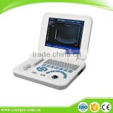 Quality Image laptop ultrasound machine scanner with Sony Printer/medical use ultrasonic diagnostic-Large Screen10.4 inch