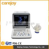 Factory price!CE approved Notebook B-Mode Ultrasound Scanner with 3.5Mhz multi-frequency convex probe RUS-9000B
