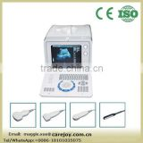 Big sale Portable Ultrasound Scanner Ultrasonic Diagnostic Machine with Convex linear transvaginal rectal Probe optional