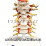 Cervical Vertebral Column with Neck Artery, Occipital, Herniated Disc and Nerves