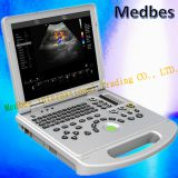 Hospital Diagnosis Equipment Color Doppler Ultrasound Scanner