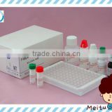 HBV Hepatitis B virus HBeAg ELISA test kit chemistry reagent