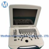 Ultrasonic, Optical, Electronic Equipments laptop Ultrasound Scanner