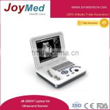 cheapest laptop animal ultrasound scanner portable laptop/Digital Laptop Ultrasound Scanner/pregnancy