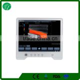 ipad wireless touch screen color doppler ultrasound equipment/ultrasound scanner