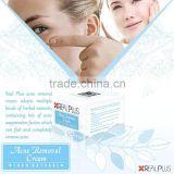 OEM whitening cream remove pimples acnes melasma treatment cream