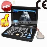 High Quality Cheap Price of Medical Handheld/Notebook/Laptop ultrasound machine with convex, linear, vaginal, rectal transducer-