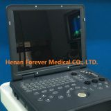 4D Color laptop Doppler Ultrasound