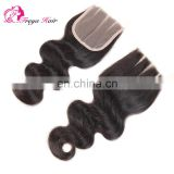 Aliexpress hot selling cheap virgin brazilian hair three part lace closure