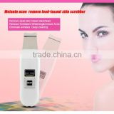 High Frequency Ultrasonic deep cleaning skin rejuvenation remove blackhead acne skin scrubber portable