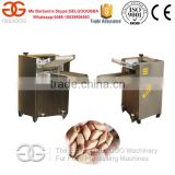 Chin Chin Making Machine/Chin Chin Cutting Machine/Chin Chin Frying Machine