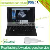 Sonostar Laptop PC based high quality medical cheapest portable ultrasound machine for sale UBook-8