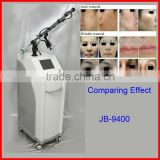 10600nm 2013 Newest Fractional CO2 Laser Wrinkle/Age Spot/Striae Gravidarum/Stretch Mark Removal Beauty Equipment Mole Removal