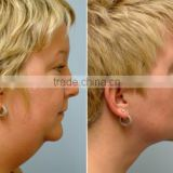 LIPOLYTIC Solutions & Cellulite Tratement For face & Body - Dermaheal LL