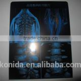 medical x-ray film,medic thermal imaging equipment agfa x-ray film kodak xray film