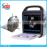 2016 New 3D 4D Color Doppler Ultrasound Machine with CFM, PW, CDE, CCD, HPRF Modes                                                                         Quality Choice                                                                     Supplier's Ch