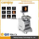 CE approved Trolley 3D/4D Color Doppler Ultrasound Diagnostic System I3 PW mode multi function