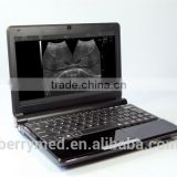 Linear Convex B Mode laptop potable Ultrasound Scanner machine 6.5MHz probe changable cardiac