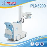 Digital X-ray portable radiography system PLX5200
