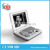 built-in battery b mode ultrasound scanner with high quality