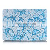 "Protective Case For MacBook pro retina 15"" 15.4"" inch, Protective Case with blue little flower"
