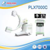 Digital C-arm equipment PLX7000C for surgical and operation room