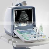 Portable Ultrasonic Diagnostic Devices Type Ultrasound Scanner