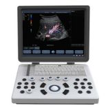 Portable Color Doppler Ultrasound Scanner Bene-3s
