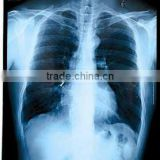 medical film x-ray dry film thermal film dry imaging film digital blue films konica medical film