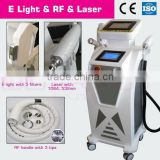 multifunction laser beauty machine/shr ipl rf with ND YAG LASER Elight RF blue and green ink tattoo removal